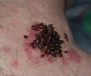 HOW TO PREVENT BED BUGS | Bed bugs feeding on hand.