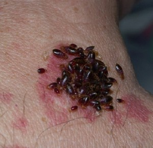 PICTURES OF BED BUG BITES: Nasty photo of a cluster of bed bugs sucking blood from a human